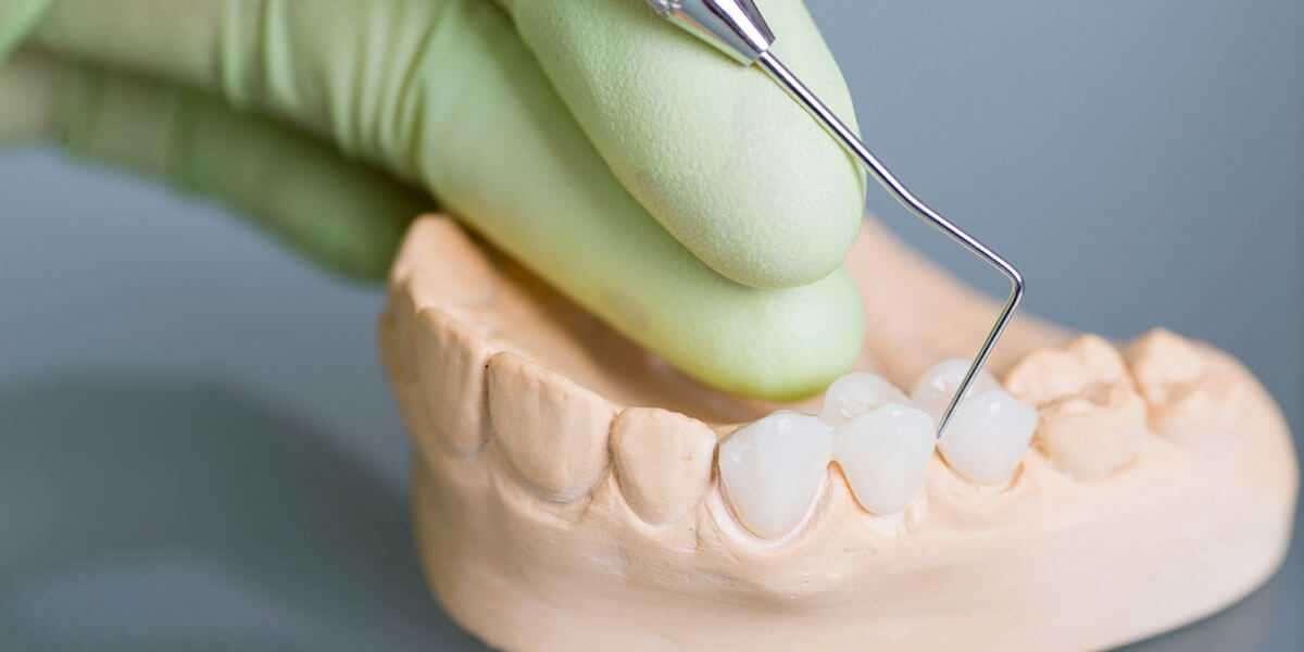 Dental Bridges Treatment at Your Tanglewood Houston Dentist